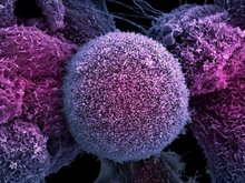 التاريخ المتوقع للقضاء على مرض السرطان