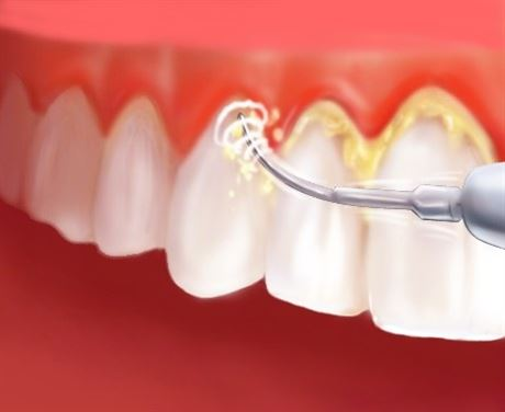 كيفية التخلص من الجير على الاسنان