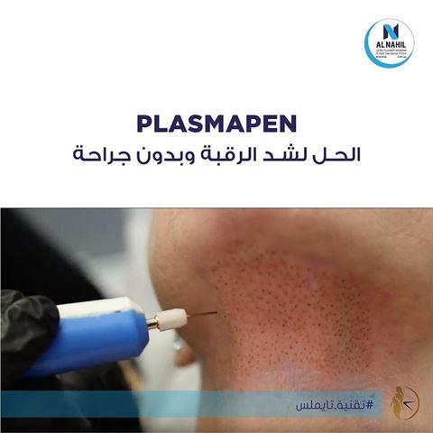 قلم بلازما بن (Plasma Pen)، الحل لشد الرقبة وبدون جراحة